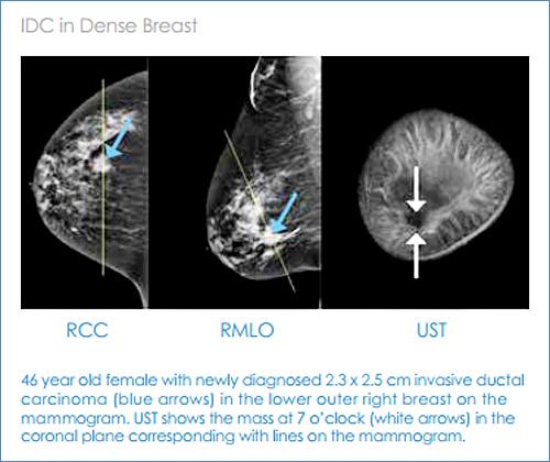 dense_breast